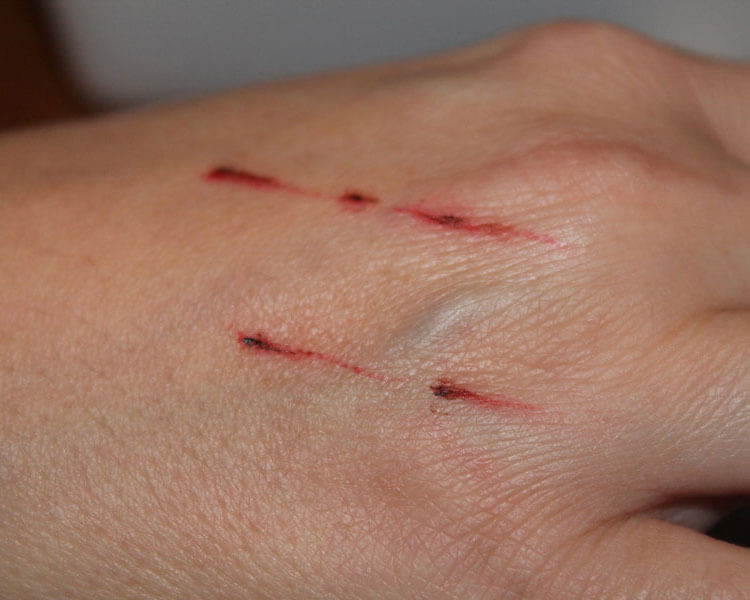 a person's hand with infected due to cat scratches