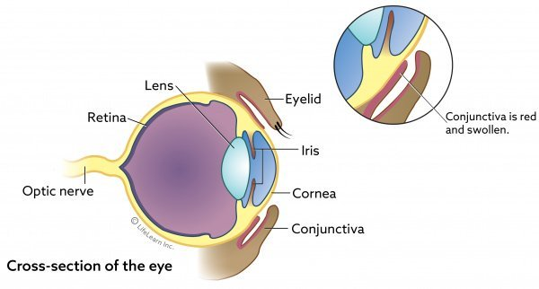Eye basic cross section w Conjunctivitis