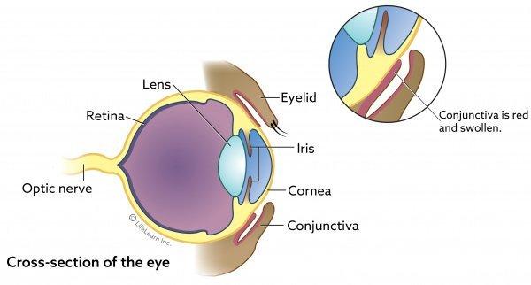 Eye basic cross section w Conjunctivitis
